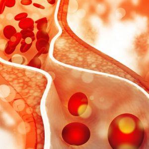 cholesterol_plaque_artery_800_480_85_s_c1.jpg