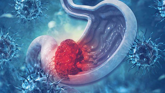 stomach-cancer.jpg