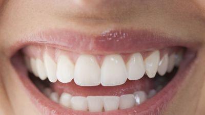 white-teeth-naturally.jpg